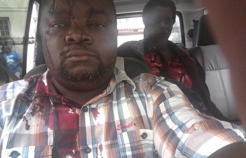 Image result for images of injured khupe assistant witness dube